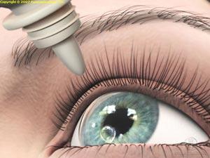 Glaucoma Drops